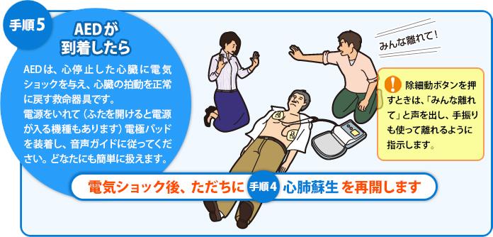 手順6:AEDの使用