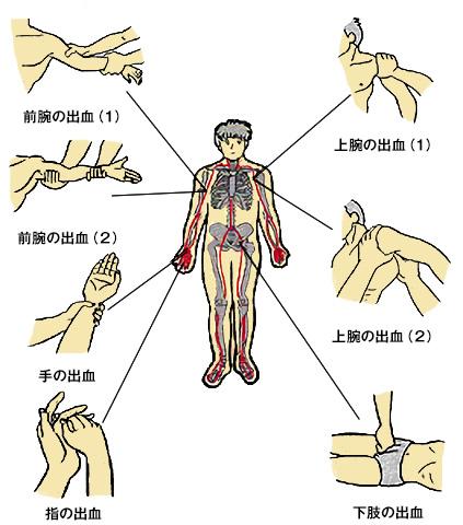 間接圧迫止血法(参考)
